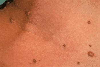 cancer ovarian endometriosis