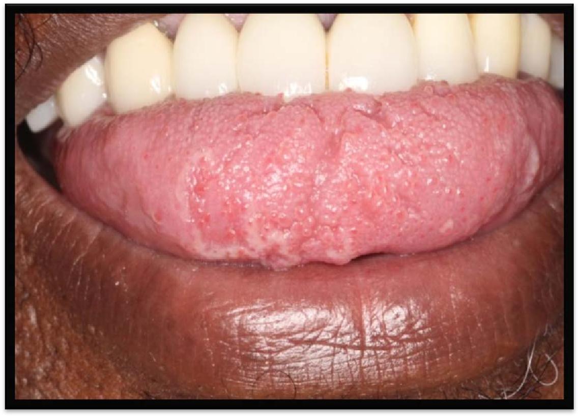 cancerul bronhopulmonar curs paraziti u ljudskom telu