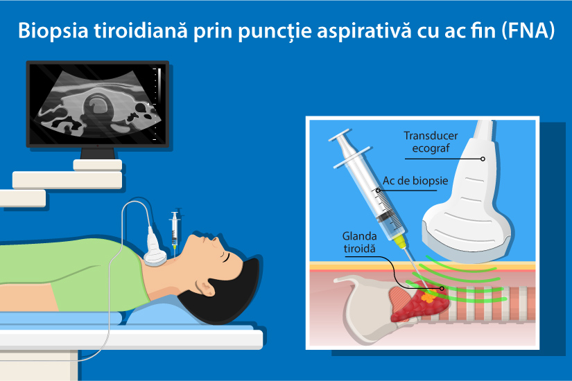 human papillomavirus and lesions papilloma breast disease