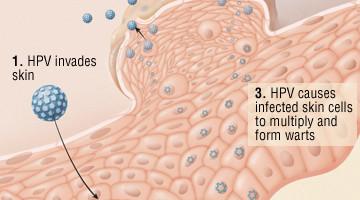 hpv trasmissione al feto