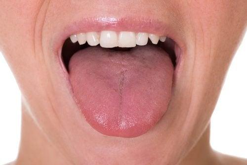papilloma lingua terapia