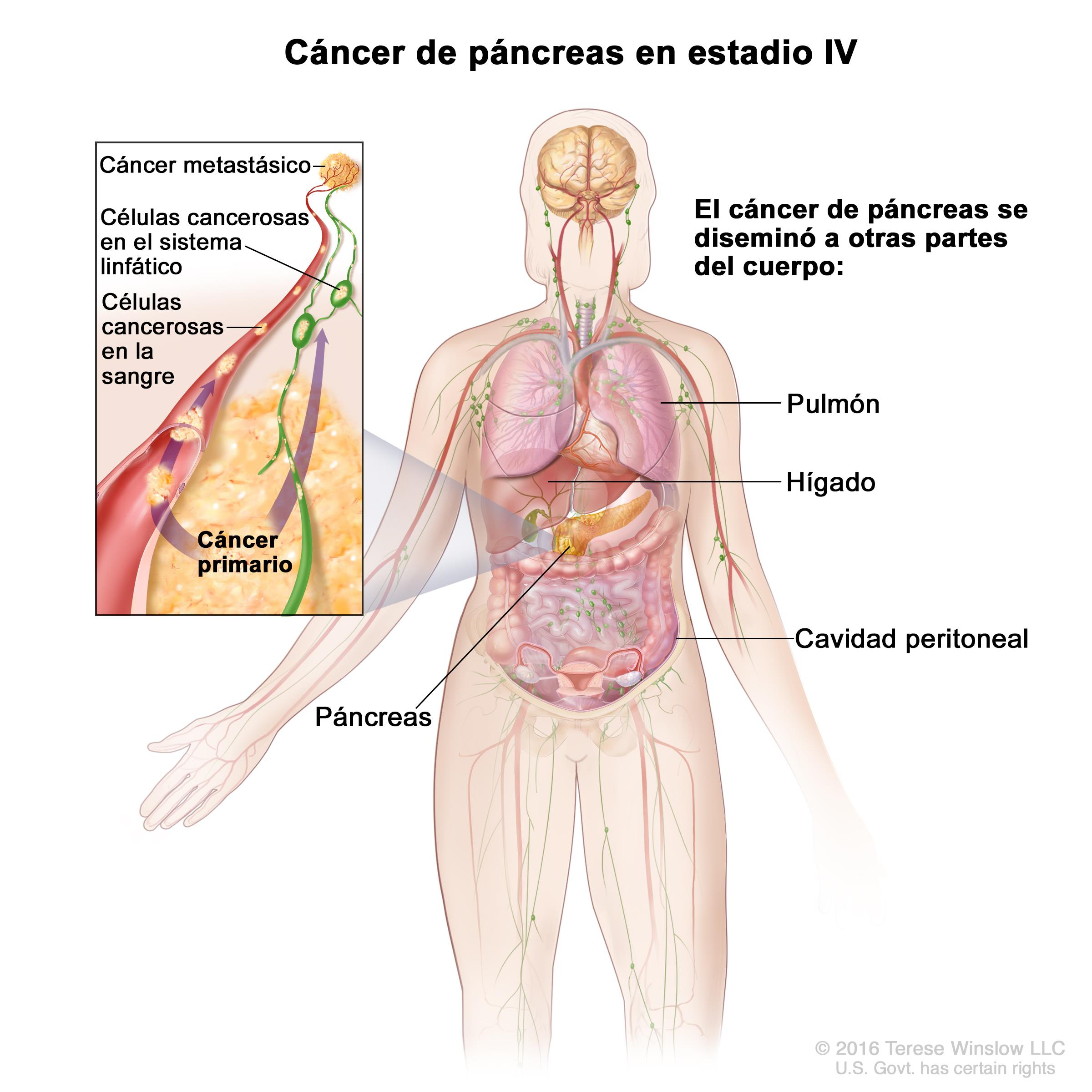 cancer de pancreas que es