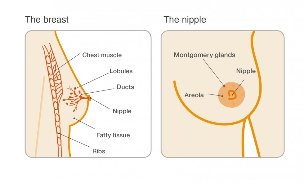 papilloma breast lesion