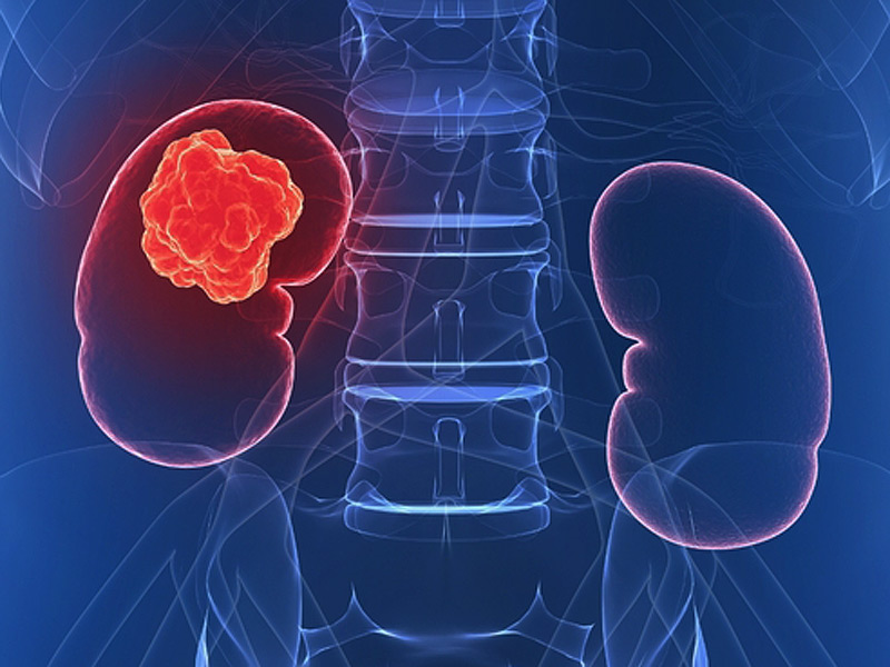 se vindeca cancerul de rinichi