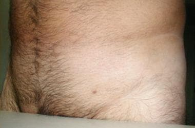 dezintoxicare intestinala