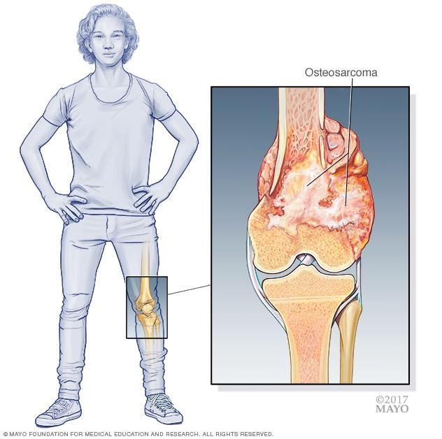 sarcoma cancer of the bone