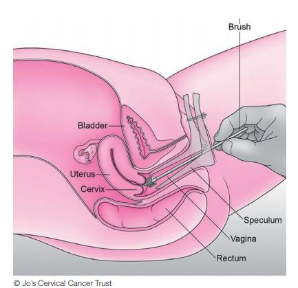cervical cancer for virgins karpas papilomas
