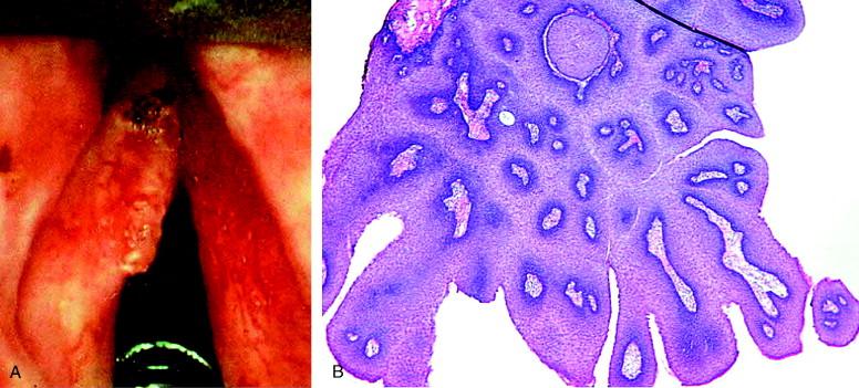 que es la gonorrea papiloma humano