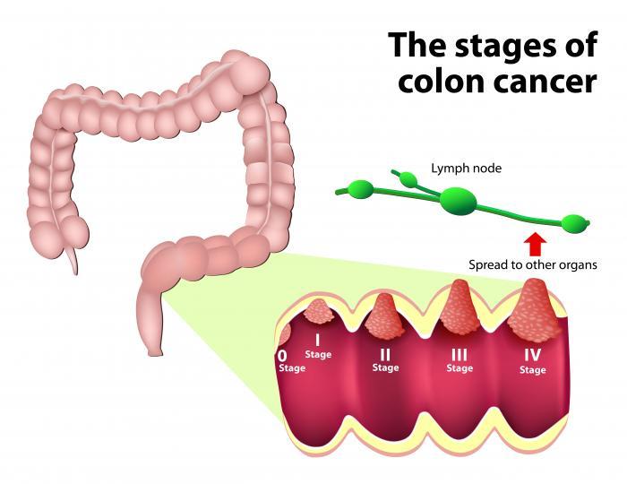 tipuri cancer colorectal)