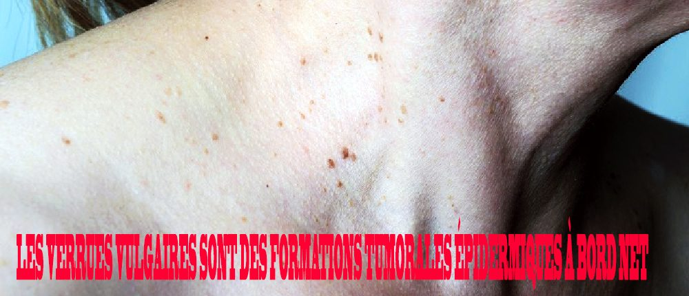 human papillomavirus infection onset hpv virus and abnormal cells