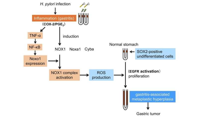 gastric cancer of causes cancer de pancreas fisiopatologia