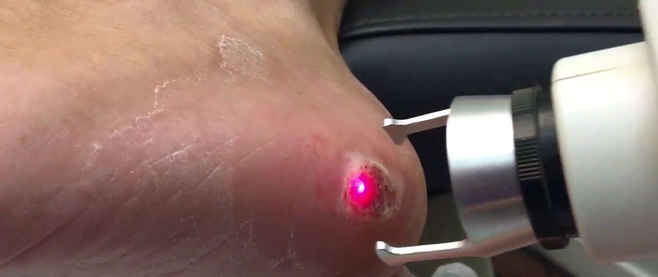 papilloma treatment laser papilloma in the tongue