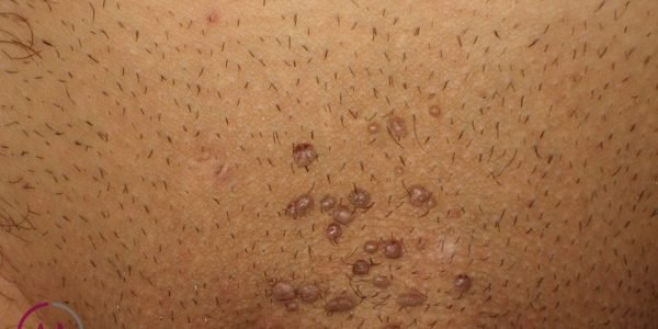 hpv wart brown papillary thyroid cancer neck pain