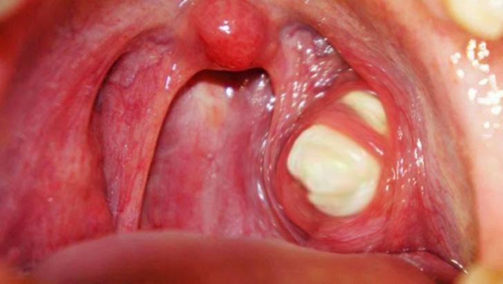 respiratie urat mirositoare bronsita îndepărtarea verucilor genitale cu un electrocoagulator