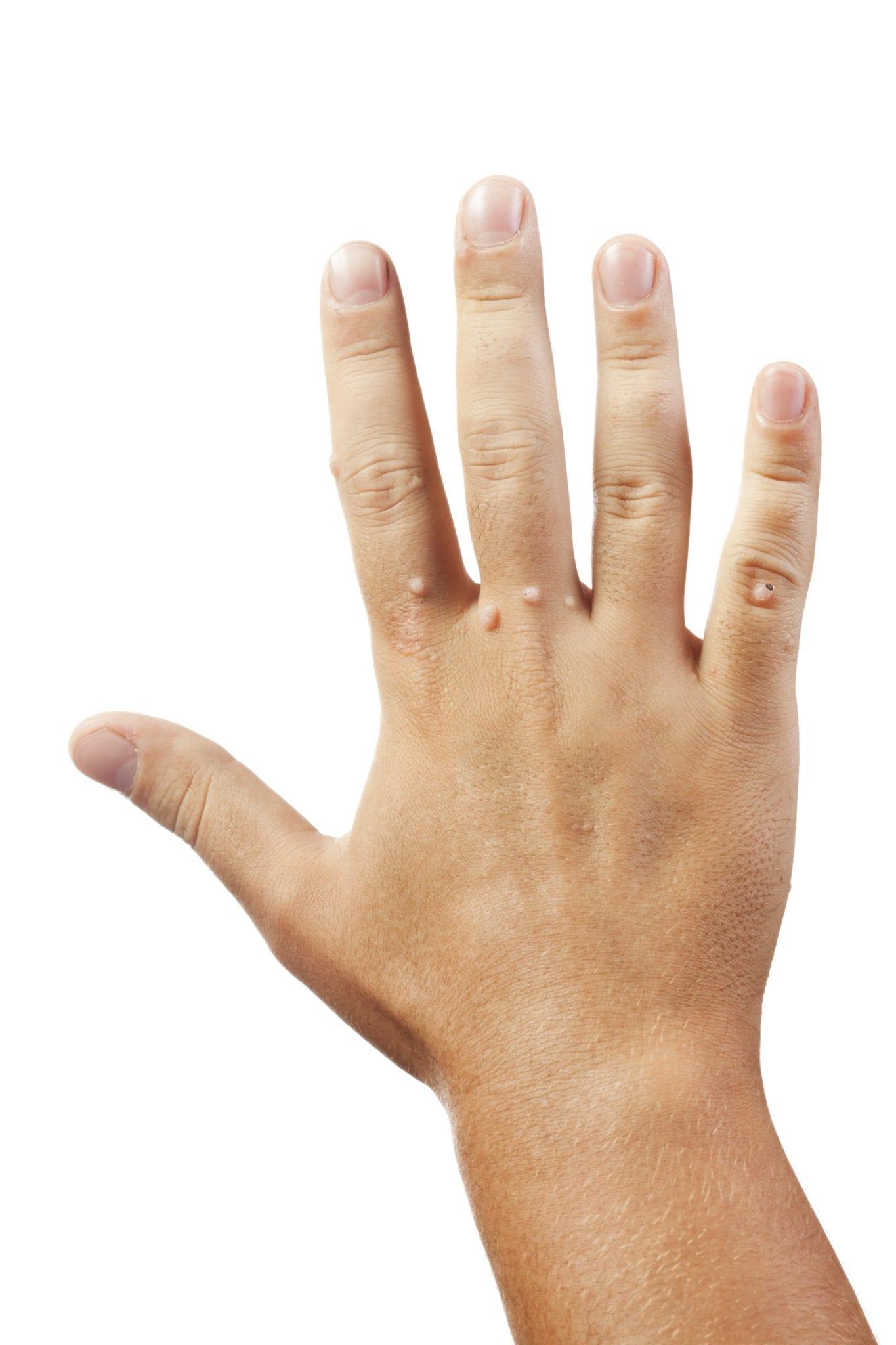 wart treatment hurts cancer bucal informacion