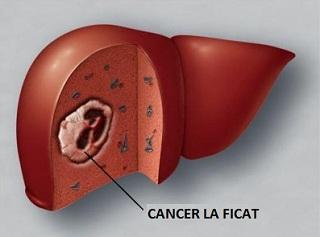 Cancerul hepatic - Hepatoblastomul