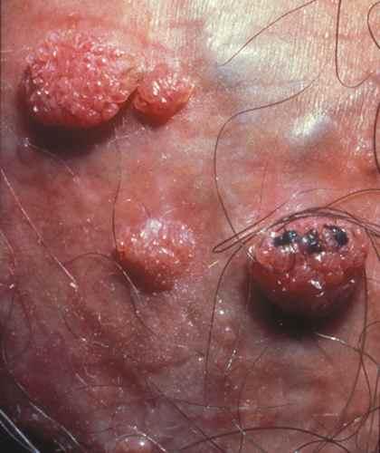 papillomavirus homme operation cancer de prostata mitos e verdades