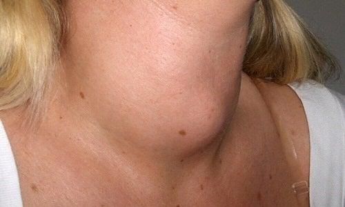 cancer uretra femenina sintomas