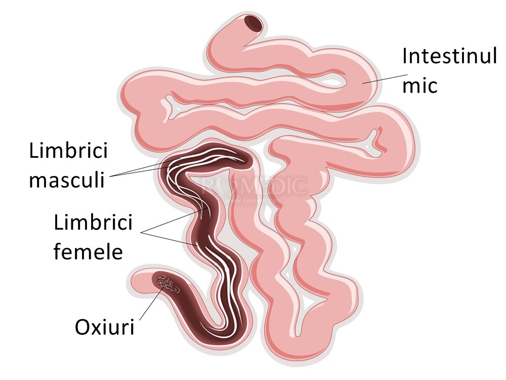 tratament limbrici oxiuri