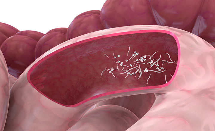 oxiurus como tratamento come scoprire il papilloma virus nelluomo