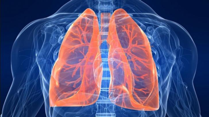 cancerul pulmonar ultima faza