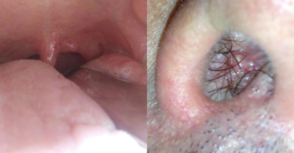 papilloma virus intervento laser paraziti v blatu simptomi