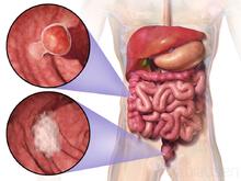 cancer colon guerison cancerul de prostata tratament