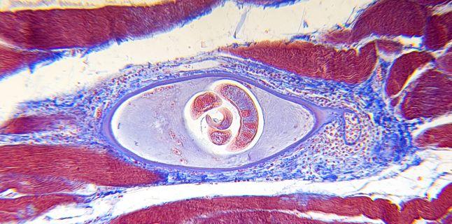 viermi paraziti trichina cancer hormonal positivo