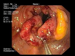 squamous papilloma urethra