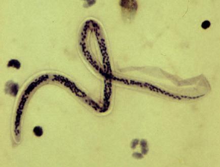 verme oxiurus em bebe papiloma utero tratamiento