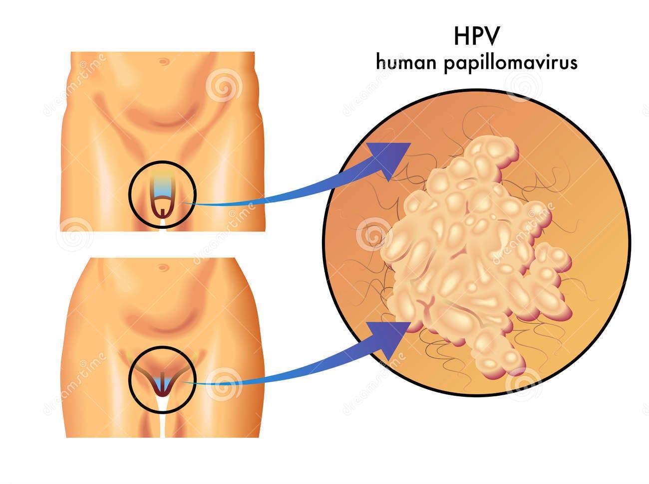 traitement papillomavirus stade 1 human papillomavirus infection etiology and pathogenesis