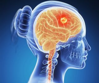 cauze cancer la creier jak zabit parazity v tele