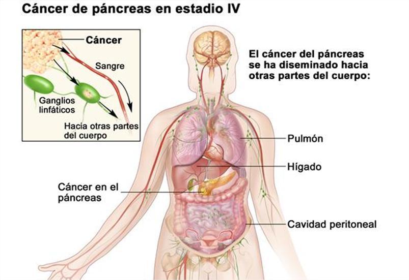 cancer pancreas metastasis higado