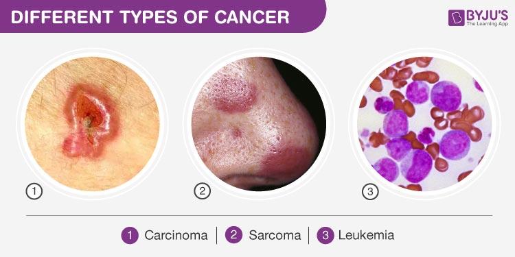 sarcoma cancer vs carcinoma