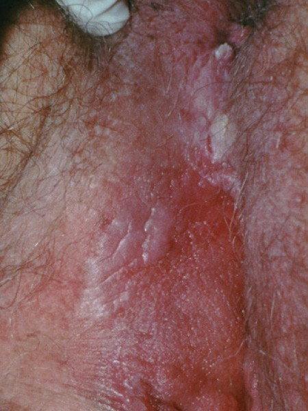 hpv skin bumps