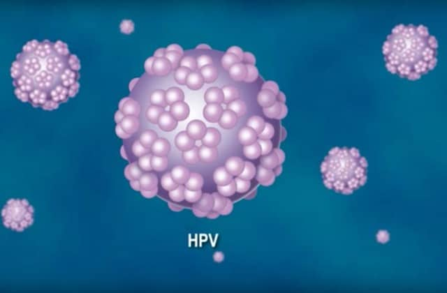 virus de papiloma humano glande