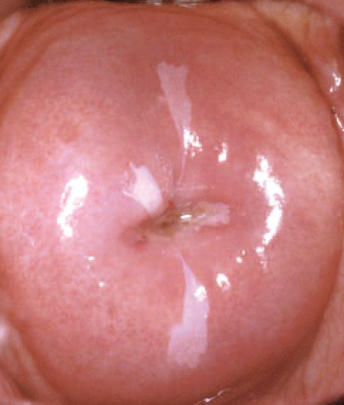 virus hpv utero de ce nu se vindeca cancerul