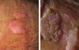 hpv genital warts female hpv impfung manner sinnvoll