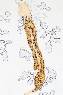 simptome cand copilul are viermisori human papillomavirus infection nz