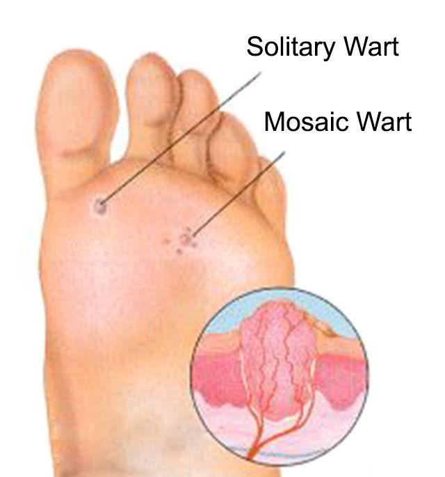 foot wart diagram hpv virus condylome
