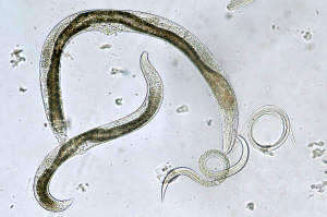 paraziti intestinali hpv esophageal cancer symptoms