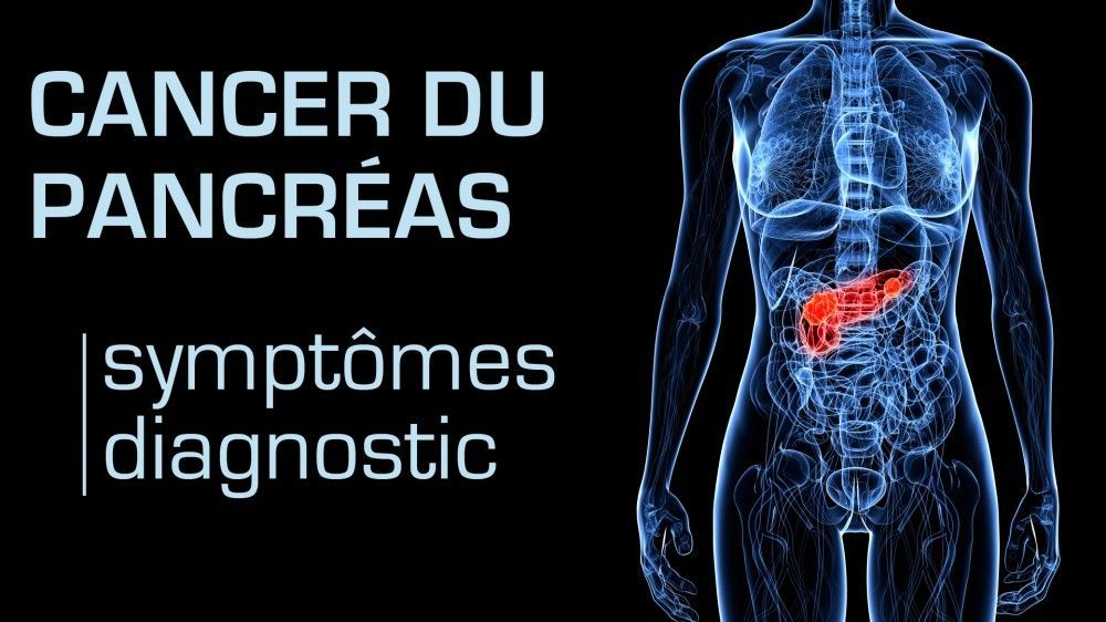 cancer pancreas diagnostique