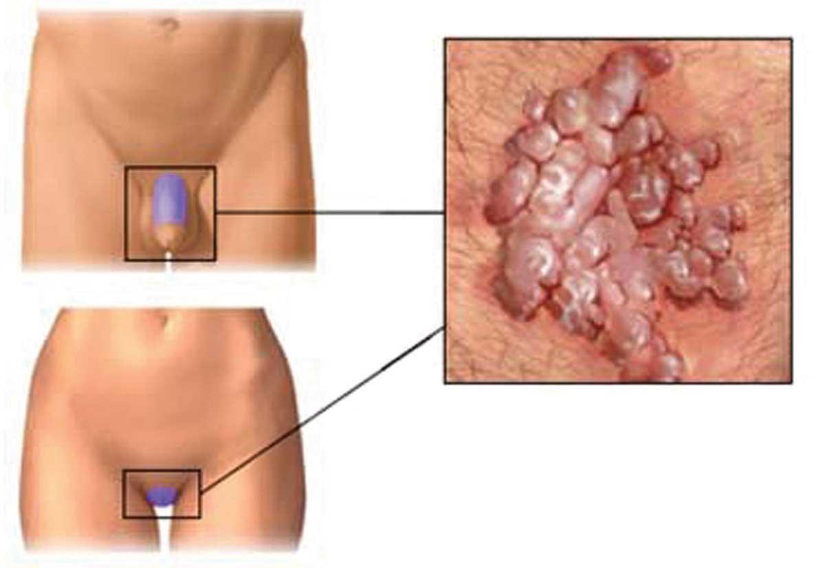 sintomi da papilloma virus nelluomo endometrial cancer bleeding
