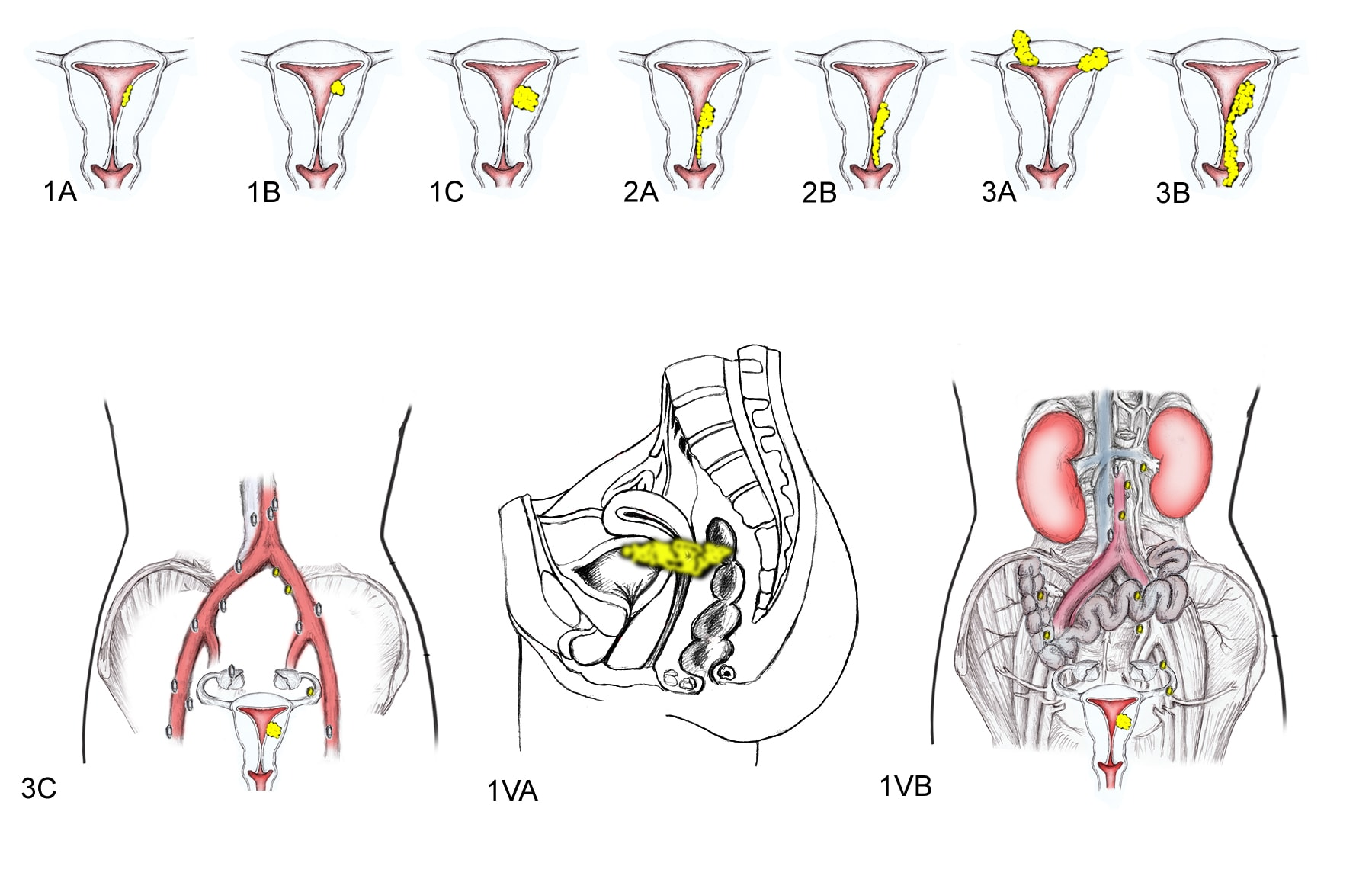 uterine cancer figo staging