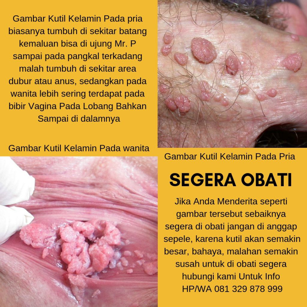 penyakit hpv pria