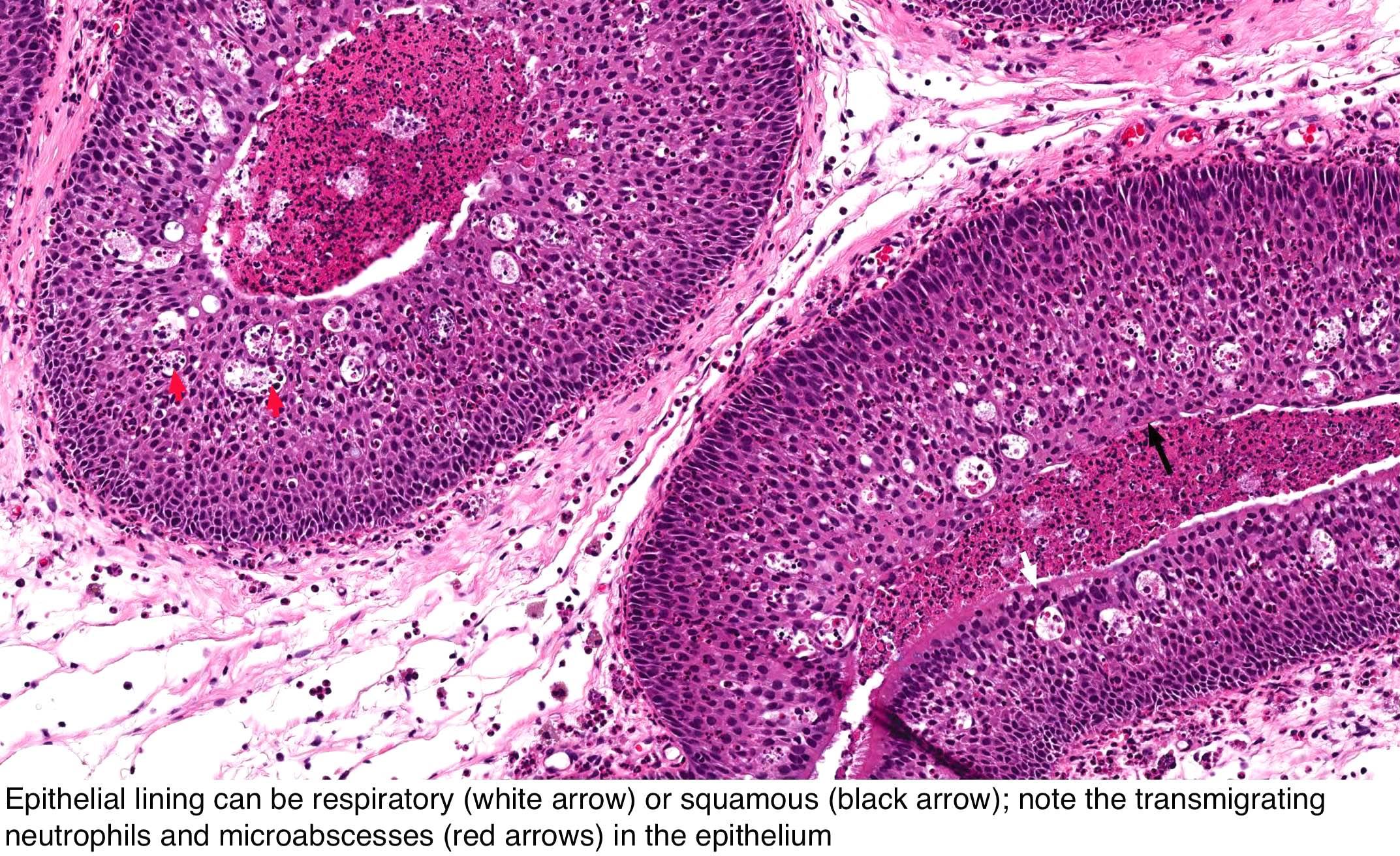 squamous papilloma webpathology