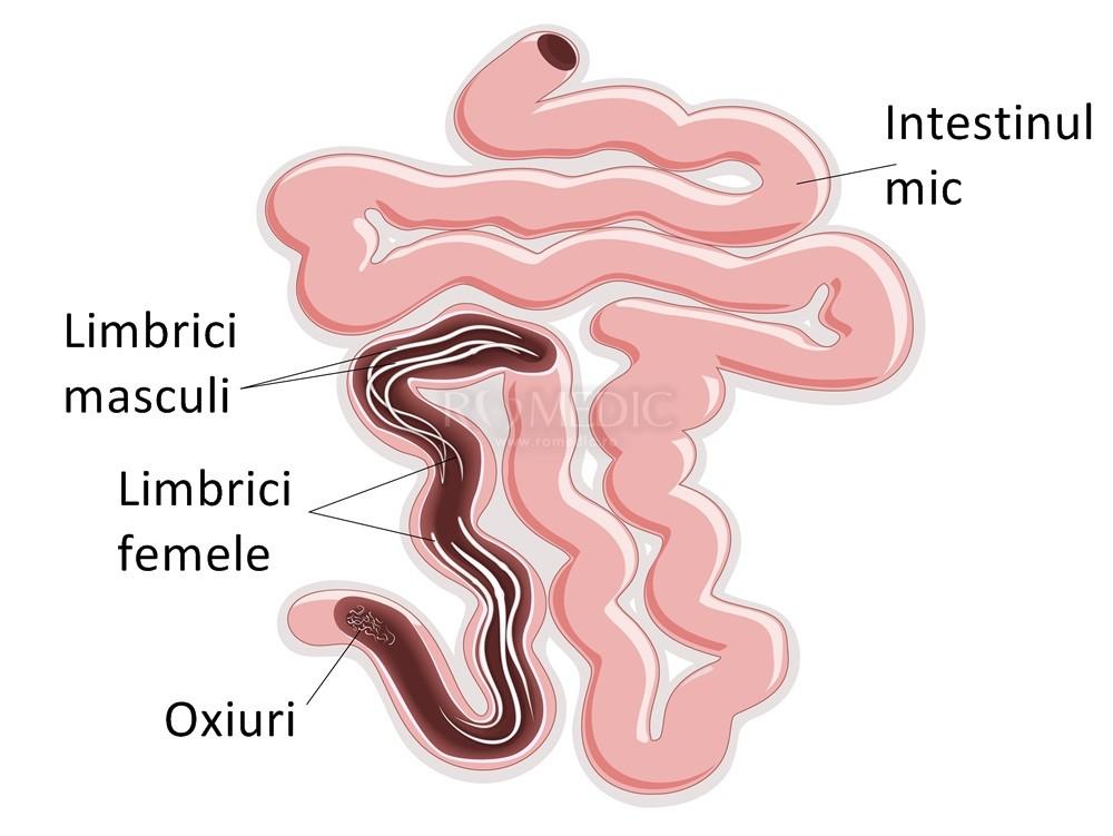 medicamente pentru oxiuri la adulti tratament natural impotriva parazitilor