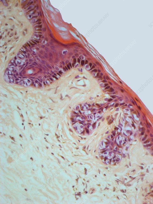 hpv throat polyps virus del papiloma en manos