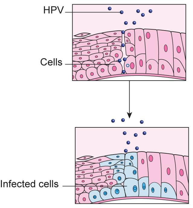 cancer cervical cells hepatocellular cancer mortality