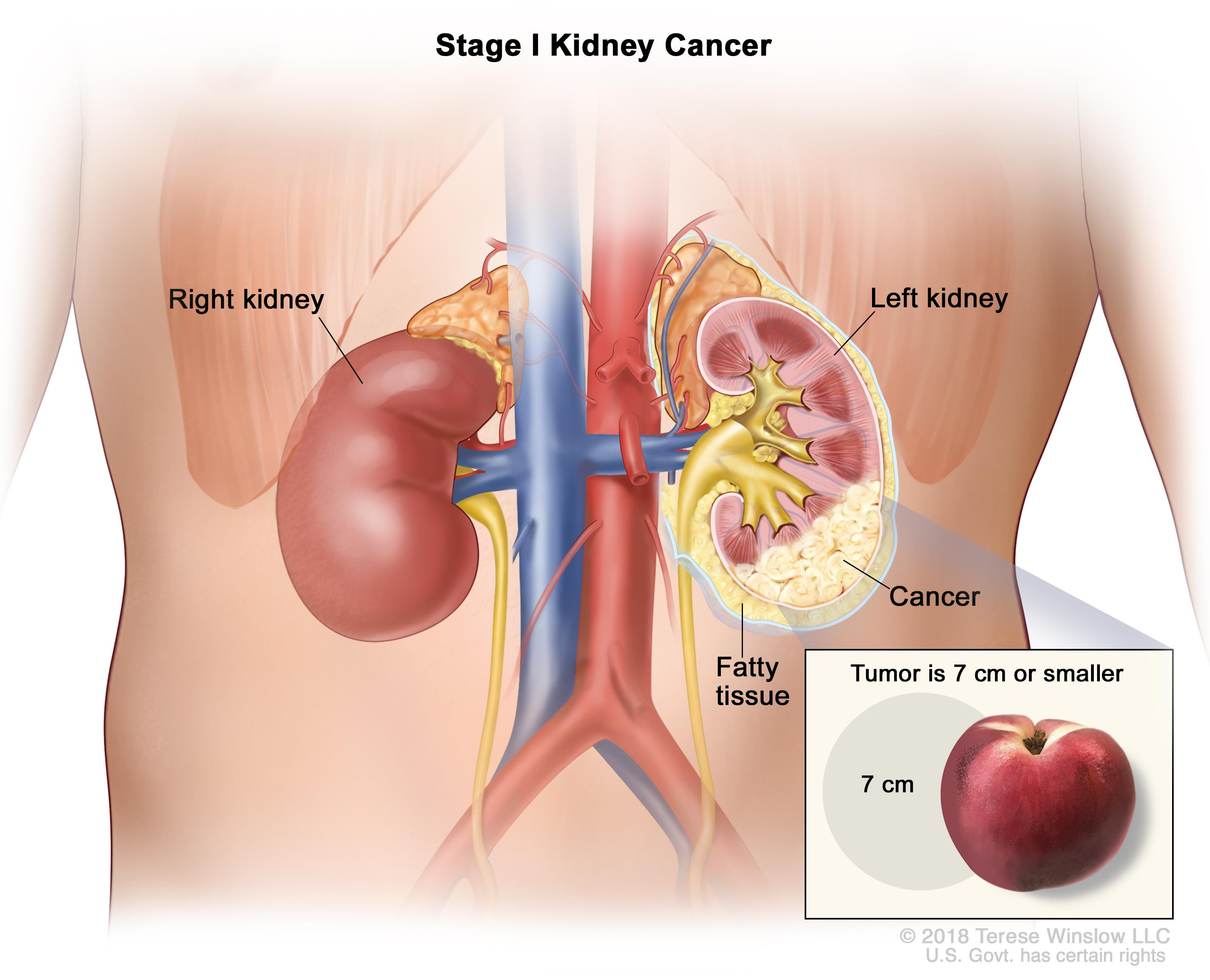 cancer renal neoplasia